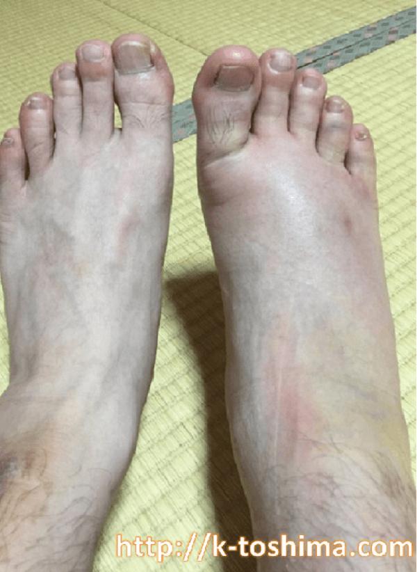 捻挫(内反し)足の腫れた画像