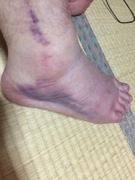捻挫(足首)の内出血の画像