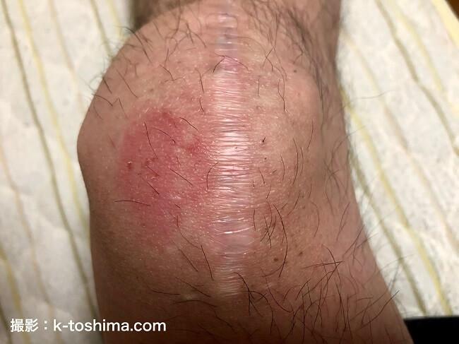 膝の皿を骨折した右足